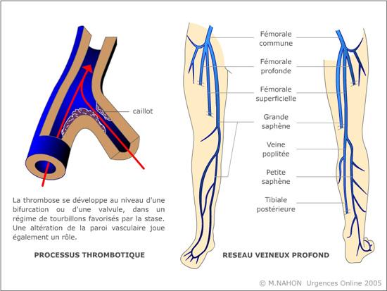 thrombose veineuse profonde pdf